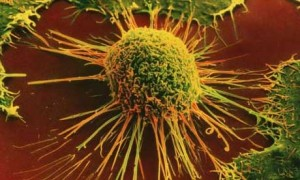 cancer cells 300x180 Psychology Medical Issues Fitness and Nutrition  When the Diagnosis is Cancer