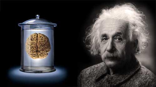 Einstein's Brain, Albert Einstein's Brain
