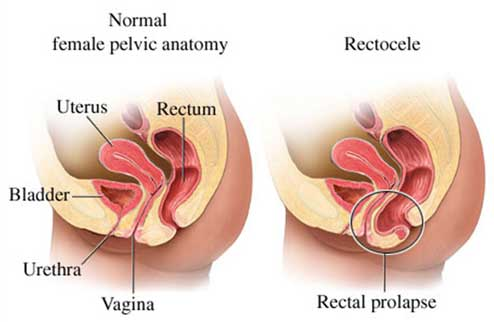 Rectocele, Rectocele: Yet Another Reason to Do your Kegels