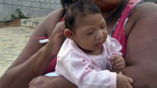 baby-with-Microcephaly